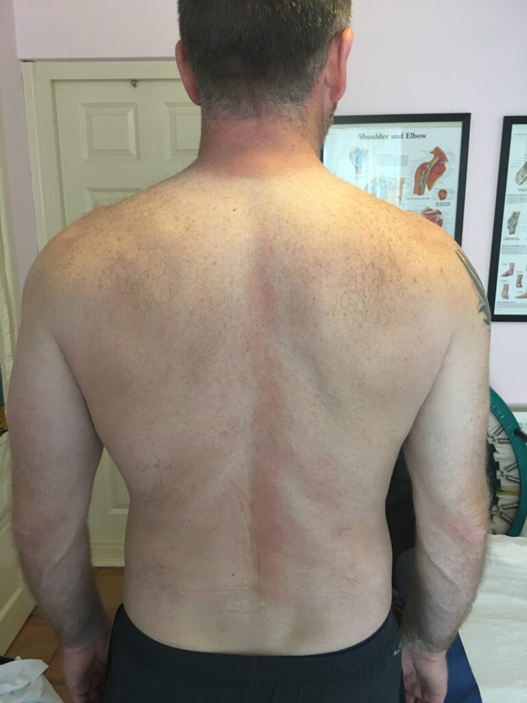 back muscles rucking